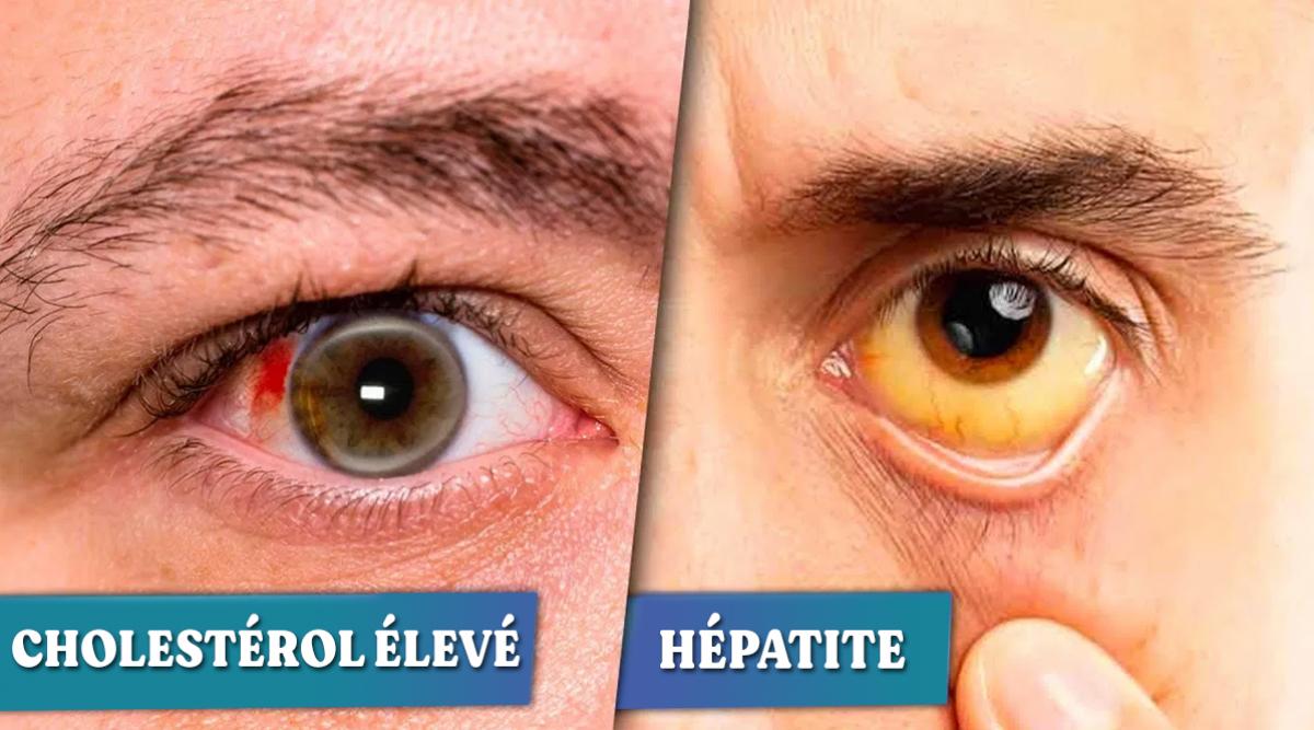 6-maladies-que-vos-yeux-peuvent-reveler